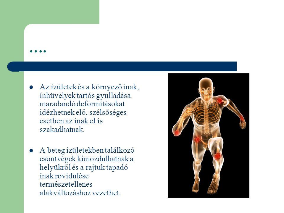 ízületi betegség törzsei)