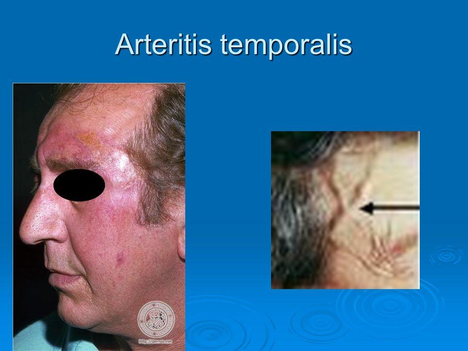 súlycsökkenés és óriássejtes arteritis)