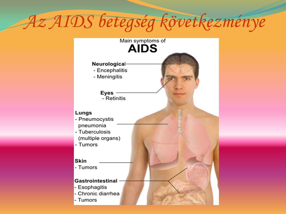 hiv betegek fogynak