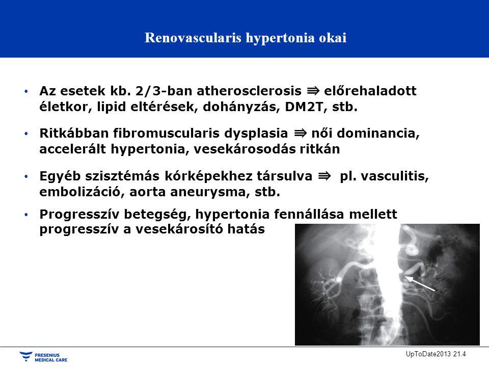a renovascularis hipertónia kezelése