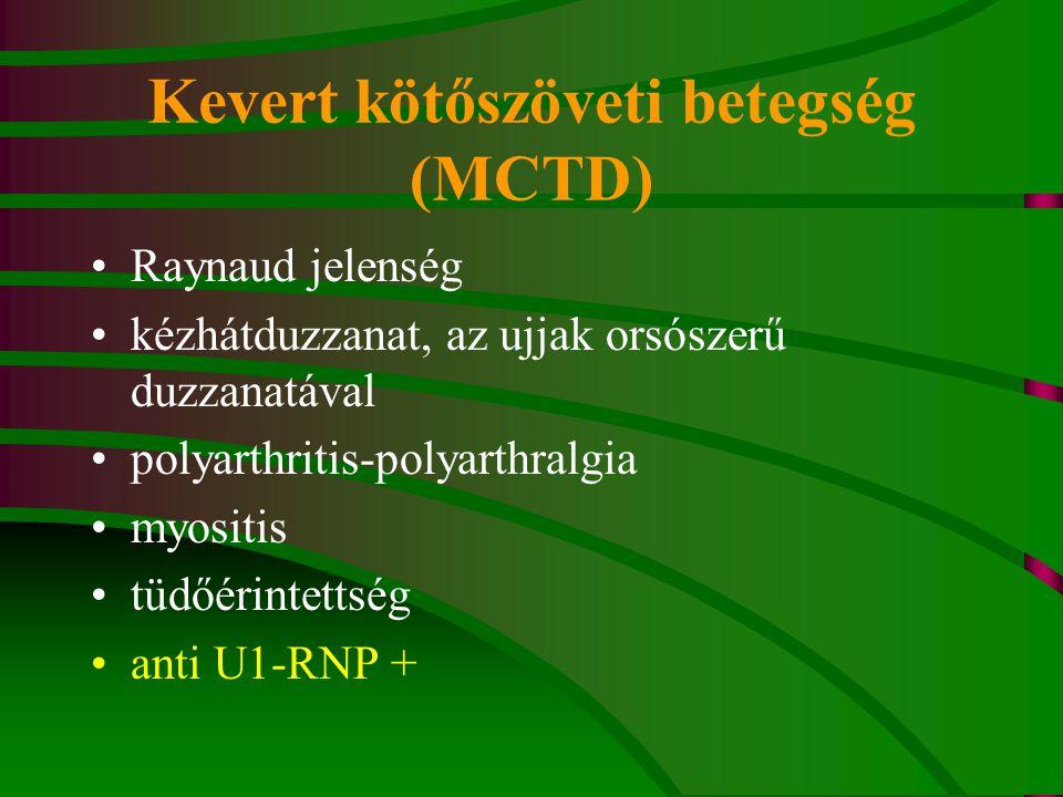 Kötőszöveti betegség előadás, Marfan szindróma