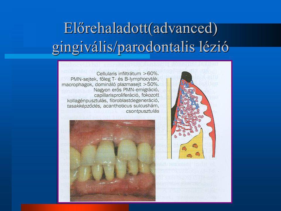 parodontális betegség