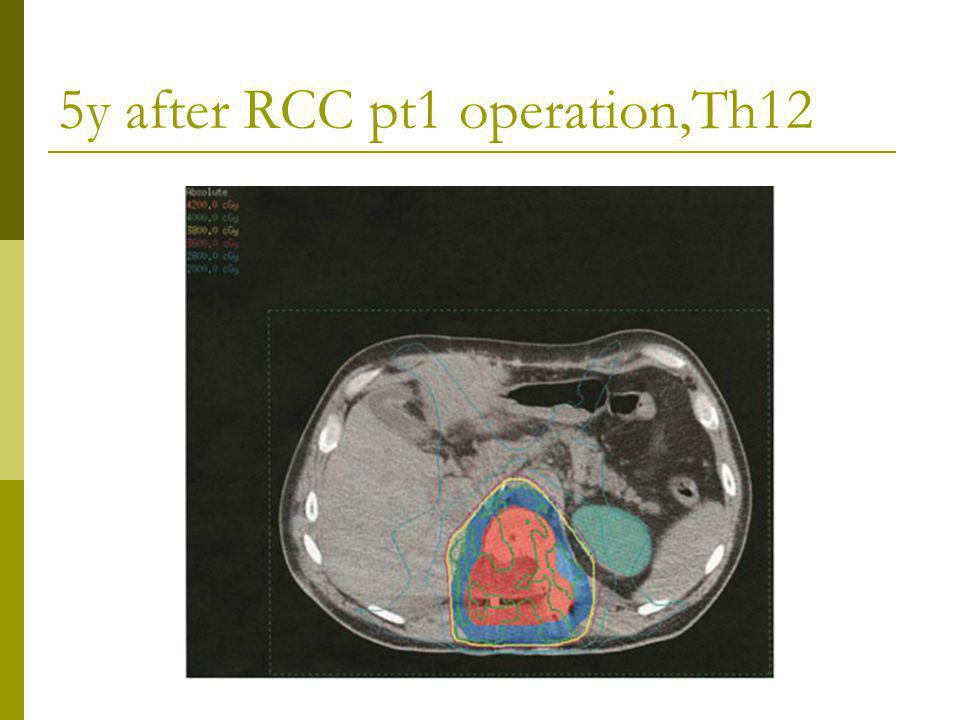 5y after RCC pt1 operation,Th12