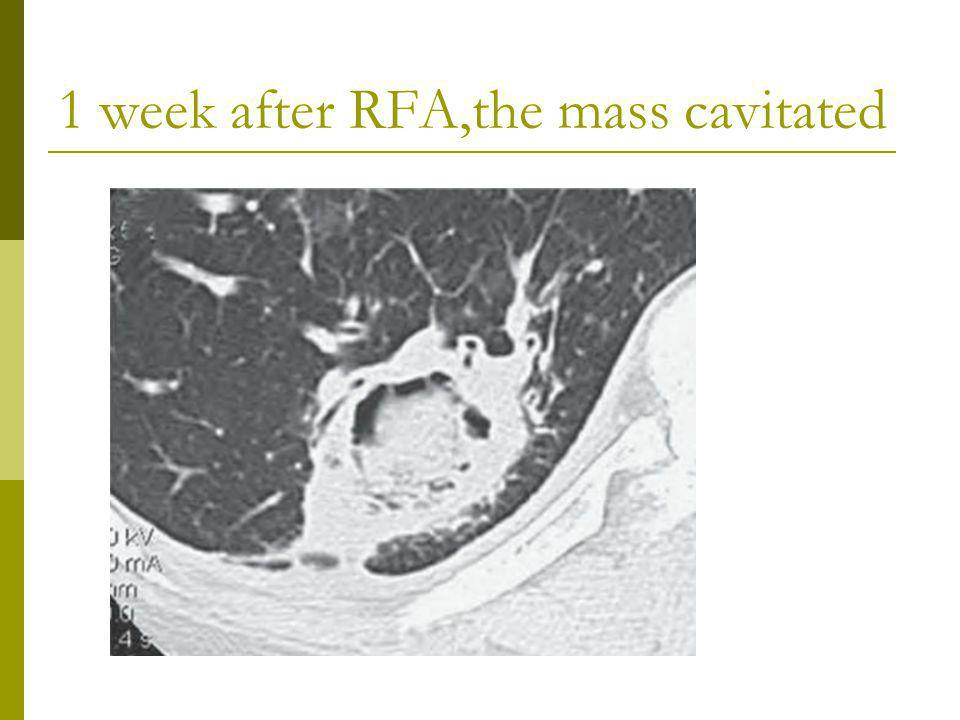 1 week after RFA,the mass cavitated