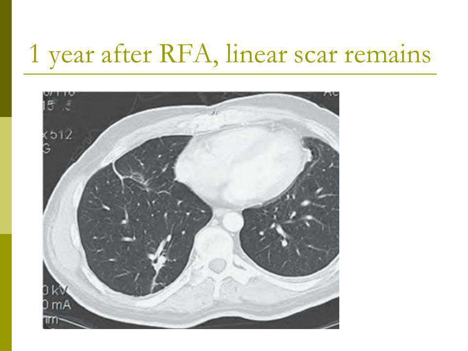 1 year after RFA, linear scar remains