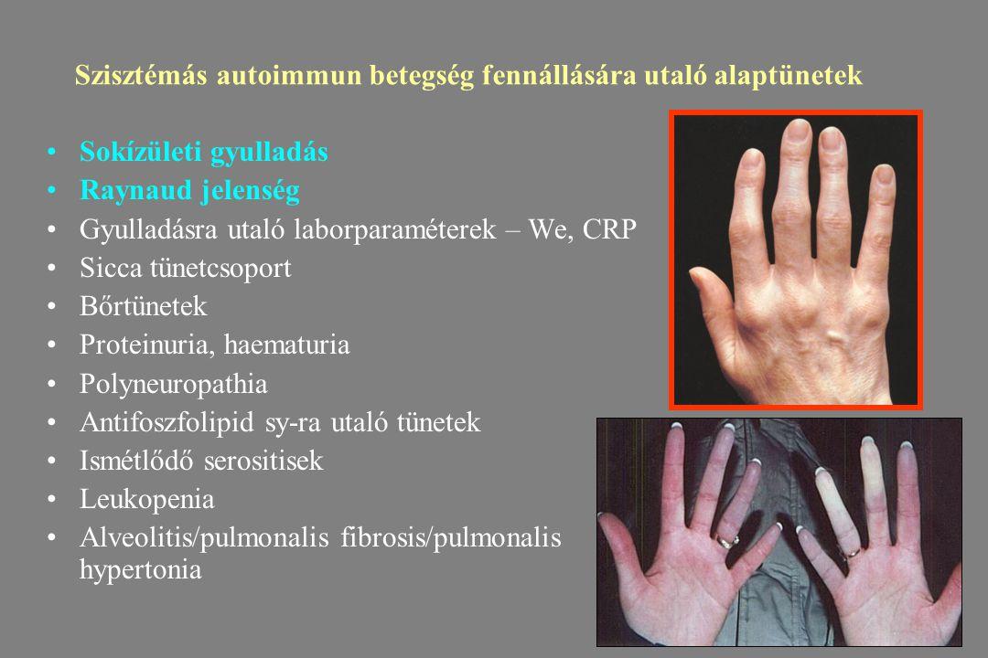Szervspecifikus és szisztémás autoimmun betegség-mi a különbség?