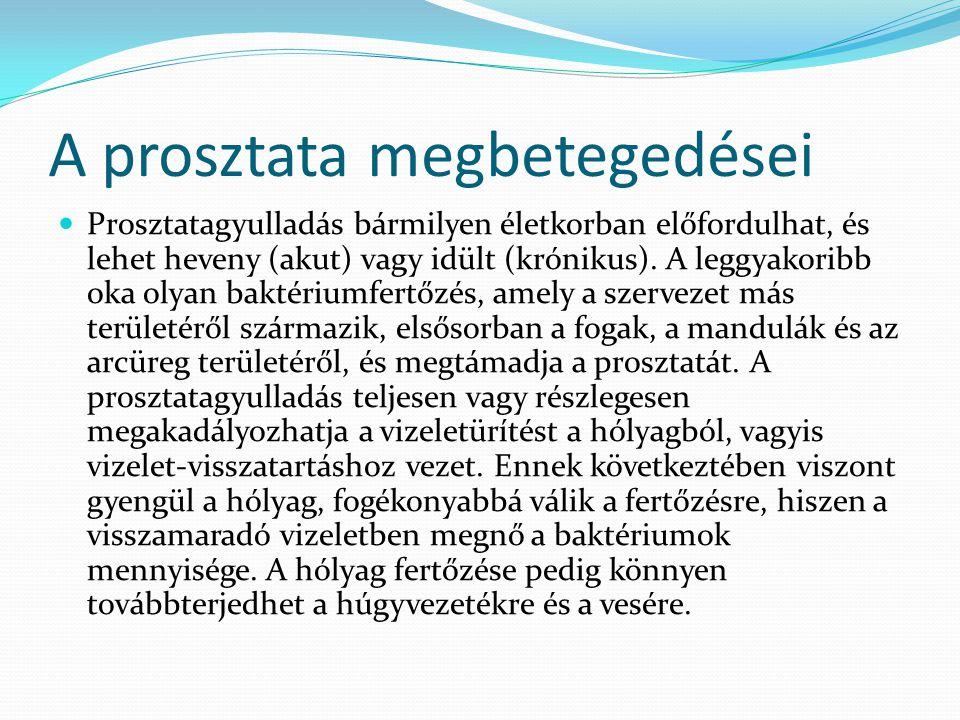 Prosztata előadás Megszabaduljon a prostatitis hagyományos gyógyszerektől